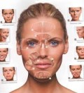 Коррекция лица ботоксом